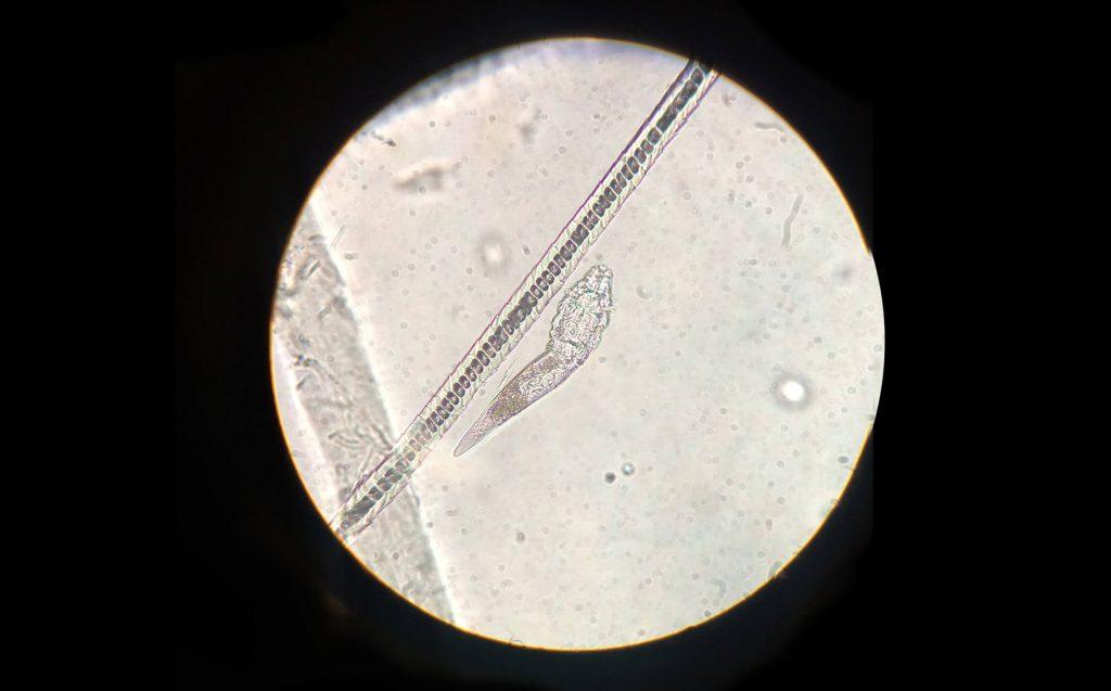 Paraziti pod mikroskopem